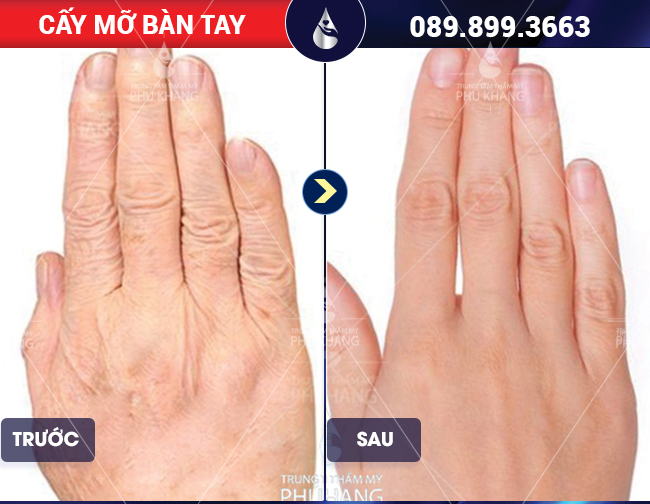 hình ảnh cấy mỡ bàn tay tại Phú Khang