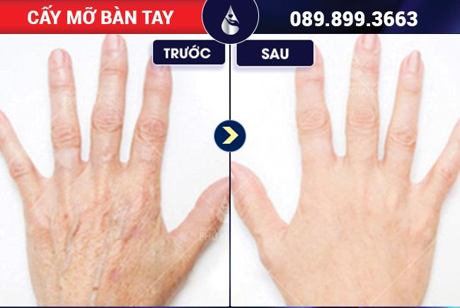 HÌnh ảnh khách hàng cấy mỡ bàn tay