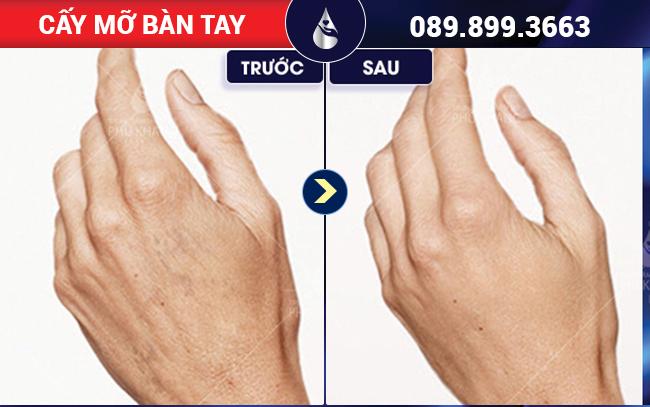 HÌnh ảnh khách hàng cấy mỡ bàn tay tại Phú Khang