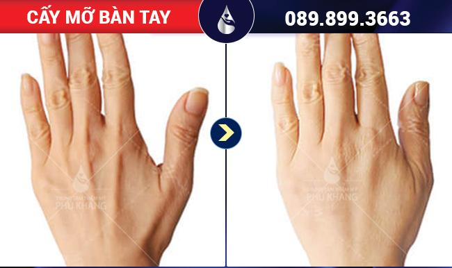 Ưu điểm cấy mỡ mu bàn tay