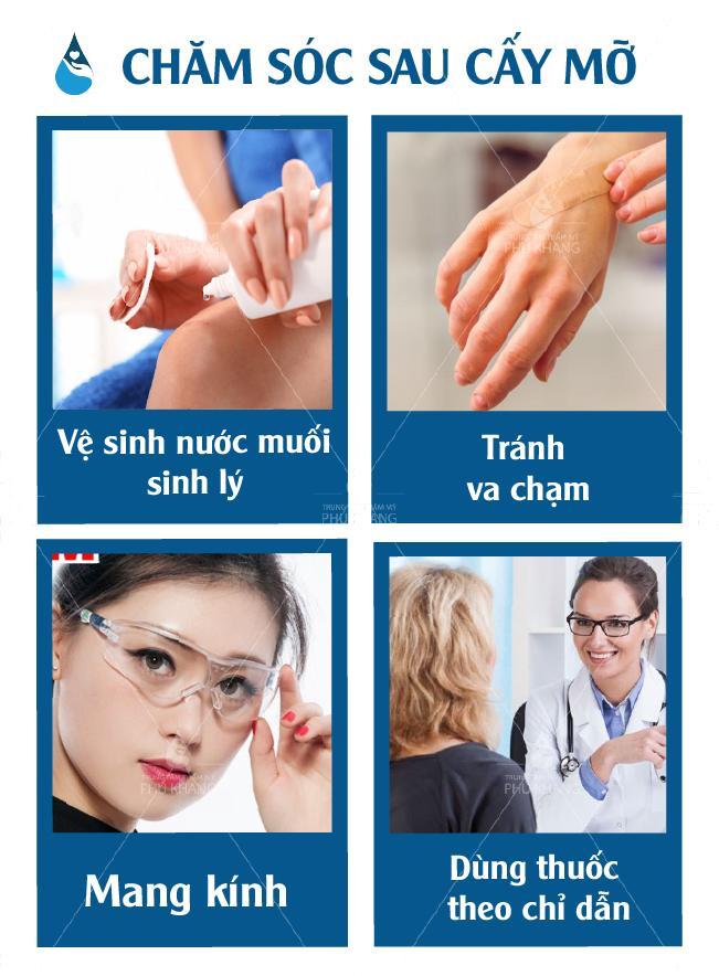Cách chăm sóc sau khi cấy mỡ hốc mắt