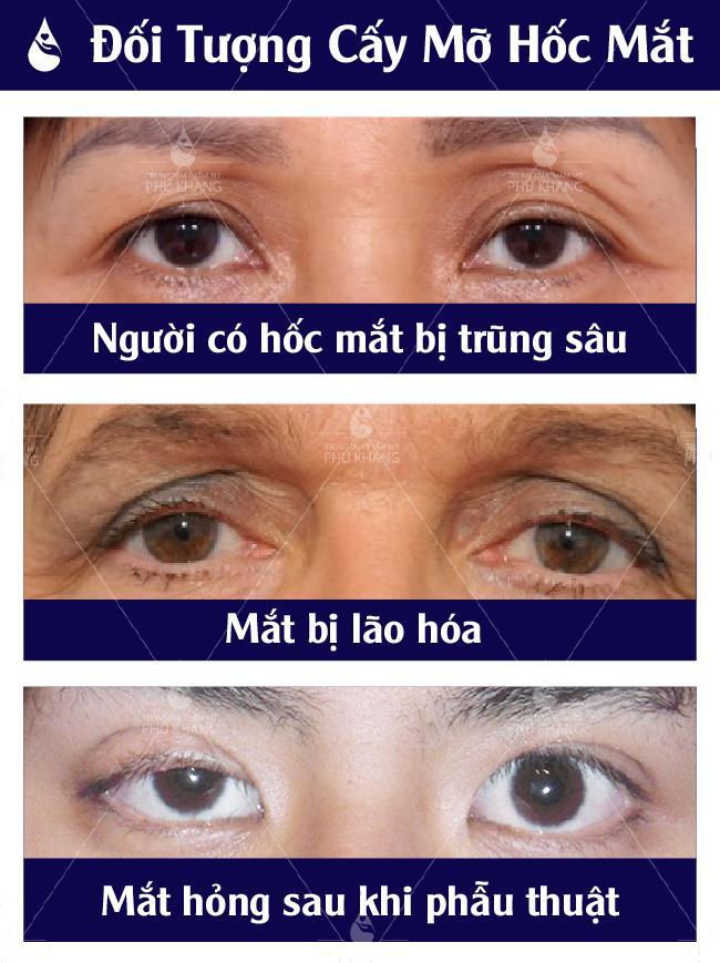 Trường hợp nên cấy mỡ hốc mắt