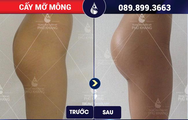 Đổi mới vòng 3 sau khi cấy mỡ mông tại Phú Khang