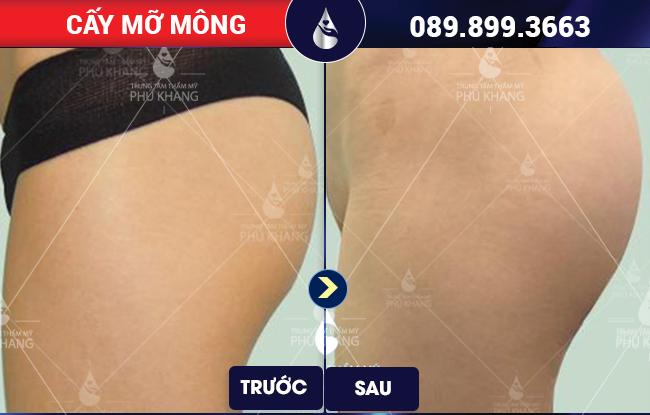 Vòng 3 căng tròn sau khi cấy mỡ mông tại Phú Khang