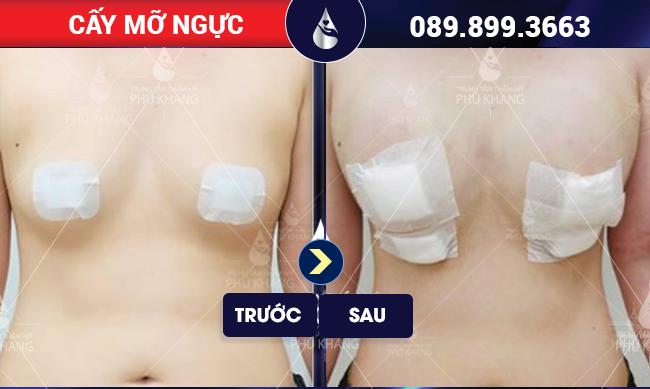 Khách hàng sau khi tiến hành cấy mỡ ngực tại Phú Khang