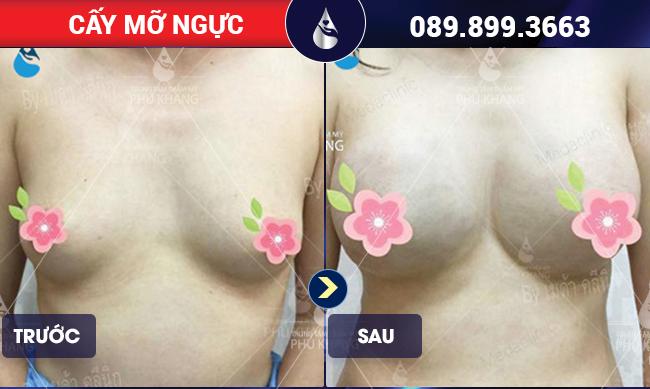 Khách hàng sau khi cấy mỡ ngực tại Phú Khang