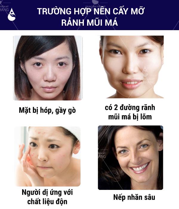 Những trường hợp nên cấy mỡ rãnh mũi má