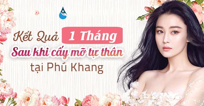 kết quả cấy mỡ tự thâng sau 1 tháng tại Phú Khang