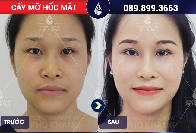 Chị Thuý cấy mỡ hốc mắt tại Phú Khang
