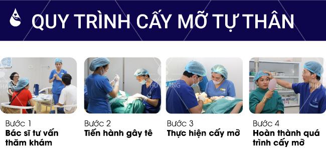 Quy trình cấy mỡ tự thân đúng chuẩn y khoa tại Phú Khang