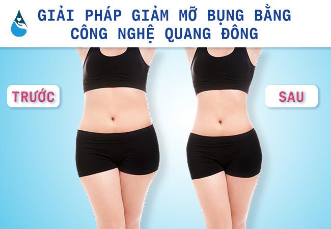 giảm mỡ bụng 2 bên hông bằng công nghệ quang đông