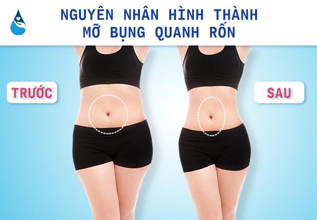 nguyên nhân hình thành giảm mỡ bụng quanh bụng