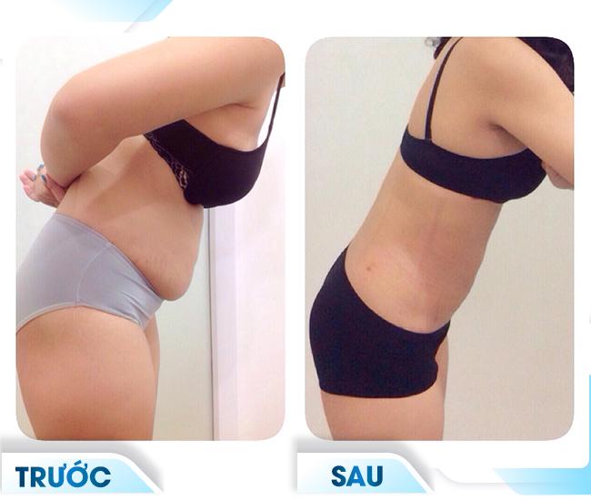 kết quả sau khi giảm mỡ bụng quang đông