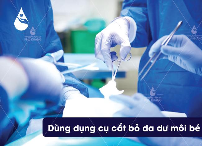 tiến hành phẫu thuật cắt môi bé