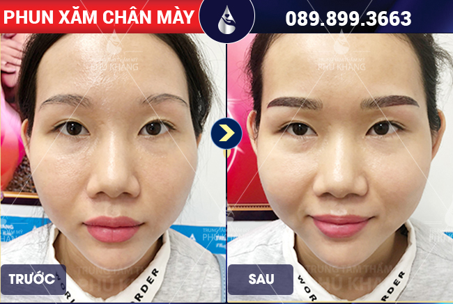 hình ảnh khách hàng phun thêu chân mày tại Phú Khang