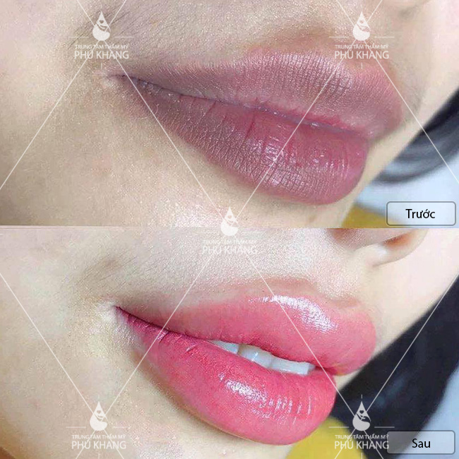 xử lý môi thâm và phun môi collagen