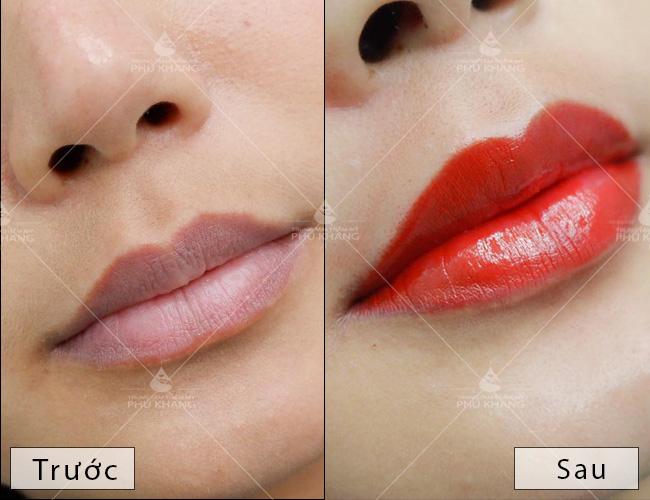 phun môi collagen , phun môi ở đâu an toàn