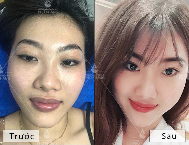 cách trị thâm môi , phun môi collagen
