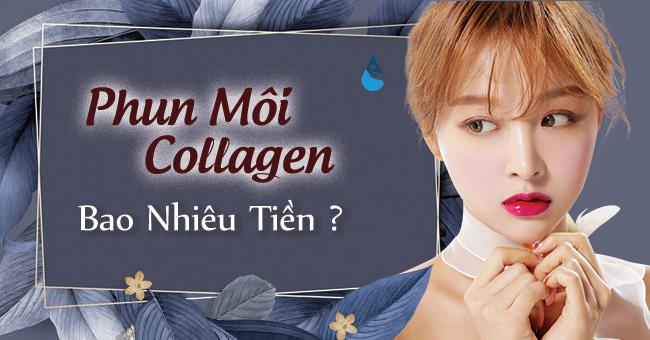 Phun môi collagen bao nhiêu tiền?