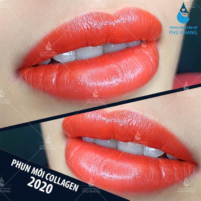 khách hàng phun môi collagen