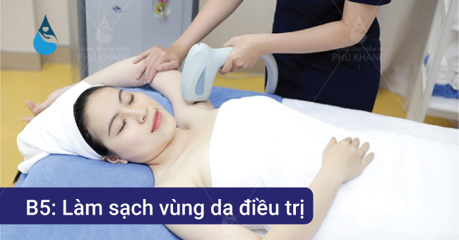 làm sạch vùng điều trị