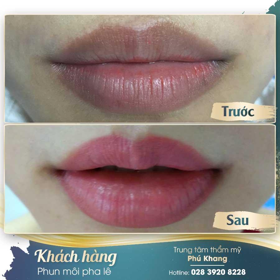 Hình ảnh khách hàng trước và sau khi phun môi 3D tại TMV Phú Khang
