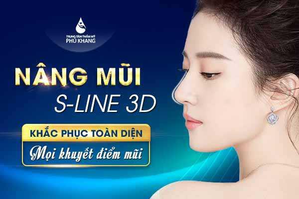 nang-mui-s-line-3d-khac-phuc-toan-dien-moi-khuyet-diem-mui