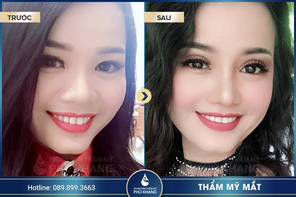 tmv-phu-khang-don-dau-cong-nghe-lam-dep-hot-nhat-hien-nay-0001