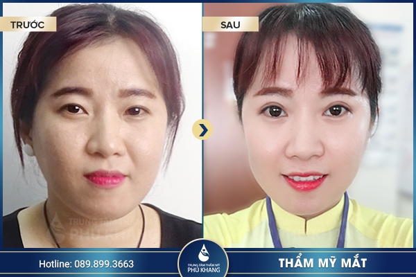 tmv-phu-khang-don-dau-cong-nghe-lam-dep-hot-nhat-hien-nay-0012