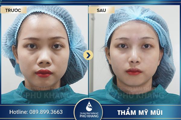 tmv-phu-khang-thuong-hieu-tham-my-uy-tin-hang-dau-002