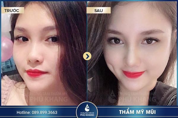 tmv-phu-khang-thuong-hieu-tham-my-uy-tin-hang-dau-004