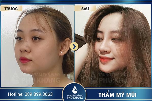 tmv-phu-khang-thuong-hieu-tham-my-uy-tin-hang-dau-005