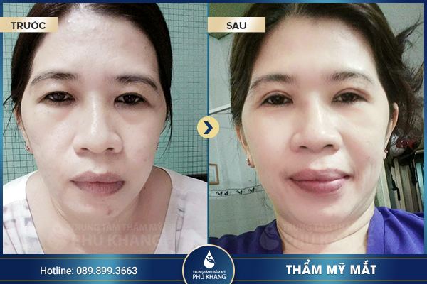 tmv-phu-khang-thuong-hieu-tham-my-uy-tin-hang-dau-008