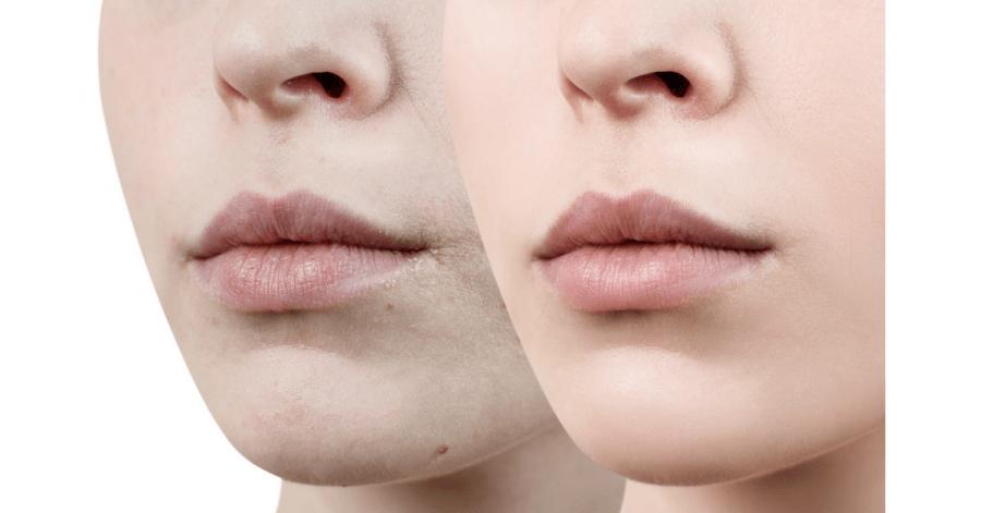 Điều trị môi thâm thâm bằng laser giúp cải thiện màu sắc cho đôi môi