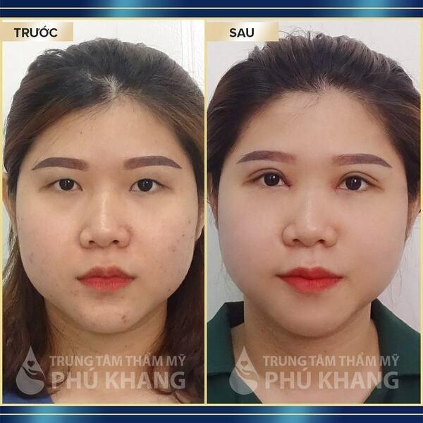 Khách hàng sau khi thực hiện tại TMV Phú Khang