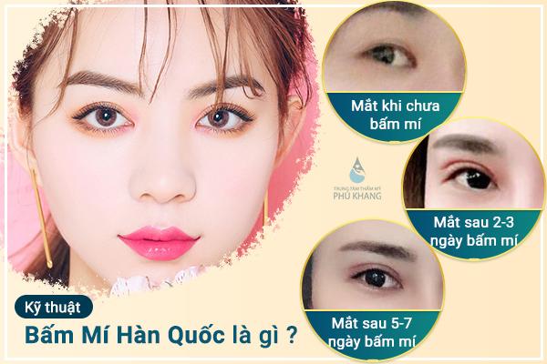 cong-nghe-bam-mi-han-quoc-tai-tham-my-vien-phu-khang