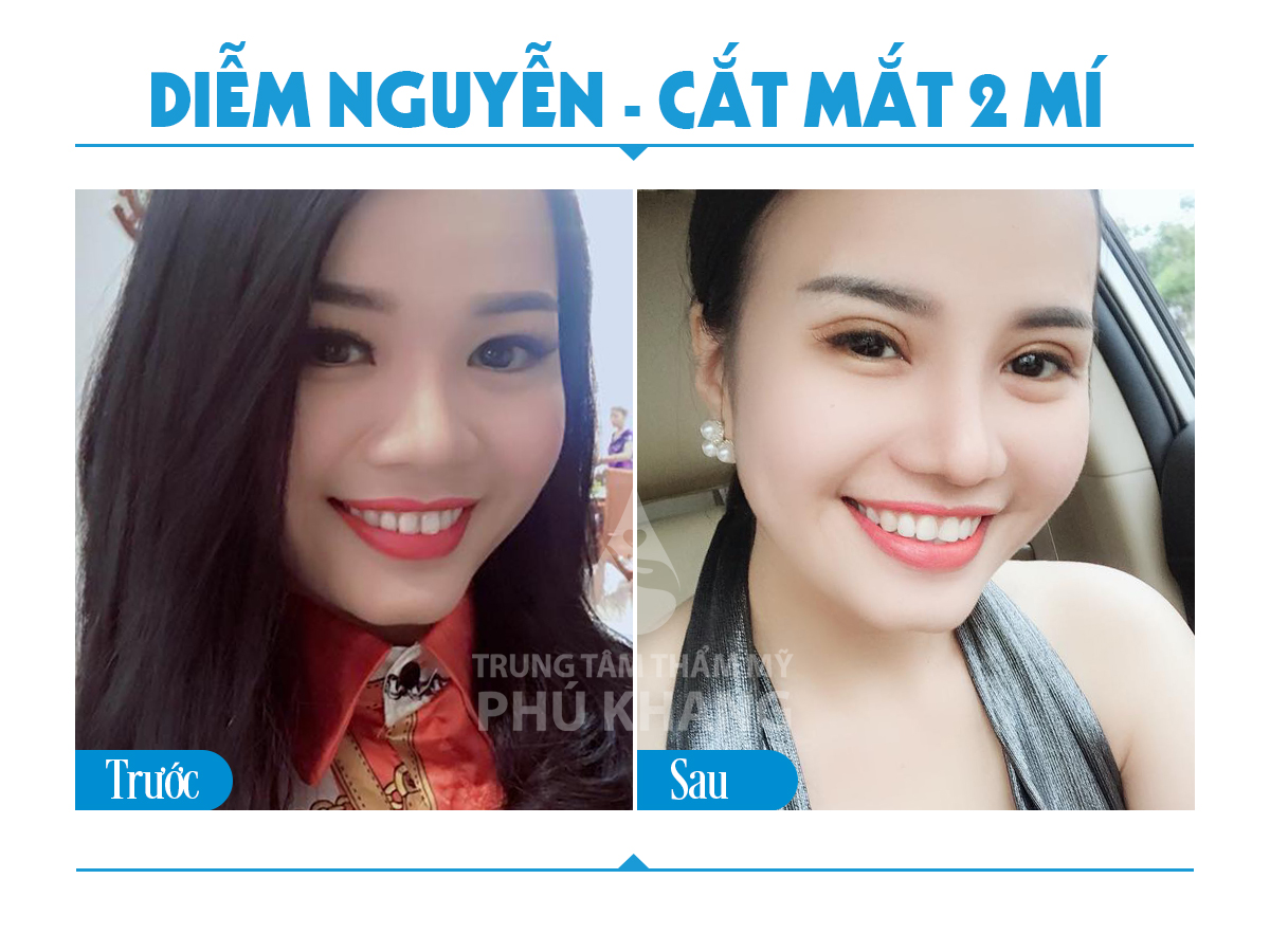 cat-mat-2-mi-nang-tam-doi-mat-viet-05