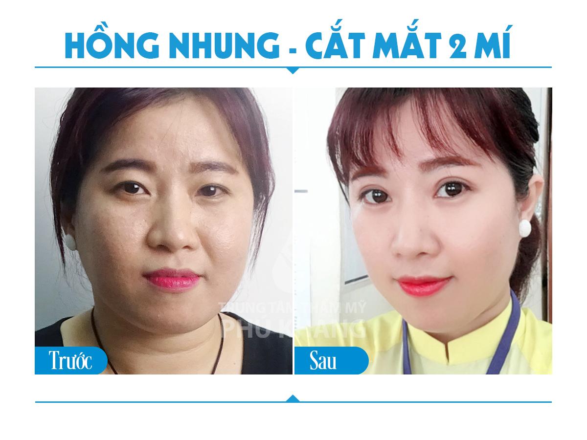 cat-mat-2-mi-nang-tam-doi-mat-viet-06