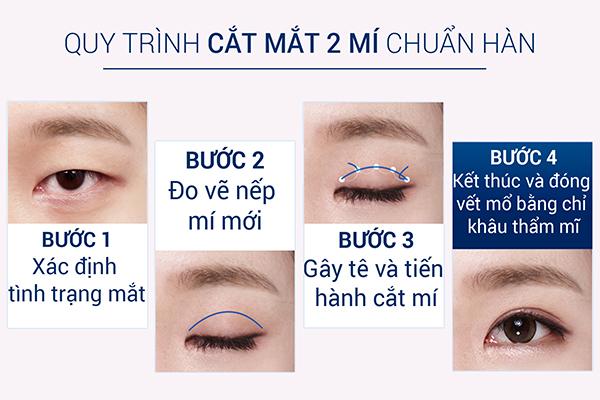 quy-trinh-cat-mi-mat-chuan-han-quoc