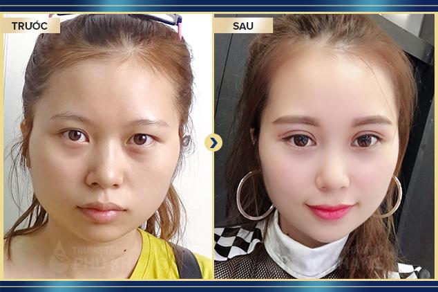Khách hàng cắt mắt plasma tại Phú Khang