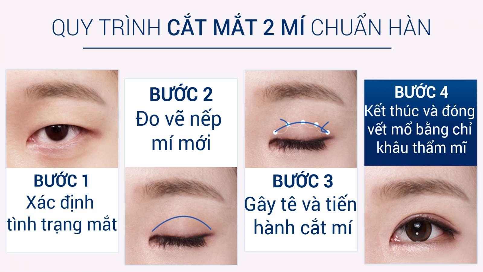 quy-trinh-cat-mat-2-mi-chuan-han-quoc