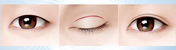 quy trình cắt mắt 2 mí