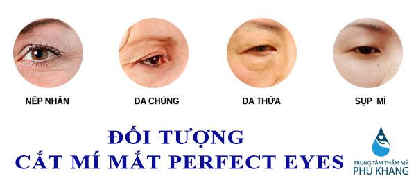 Cắt mí mắt perfect eyes