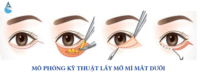 lay-mo-bong-mat-mi-duoi