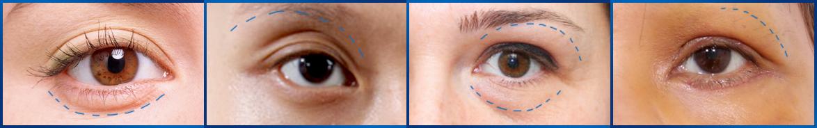 ưu điểm lấy mỡ bọng mắt