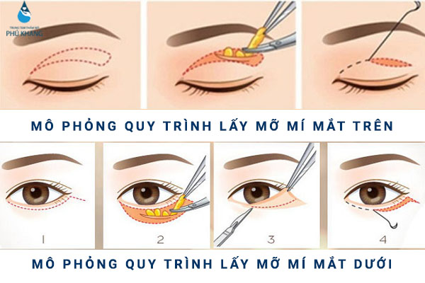 Kỹ thuật thực hiện lấy mỡ bọng mắt
