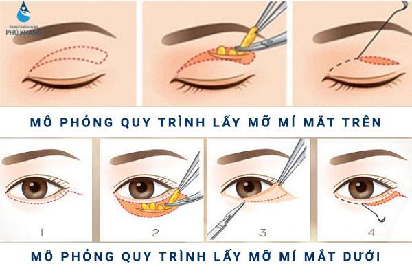 ky-thuat-lay-mo-bong-mat-tai-phu-khang