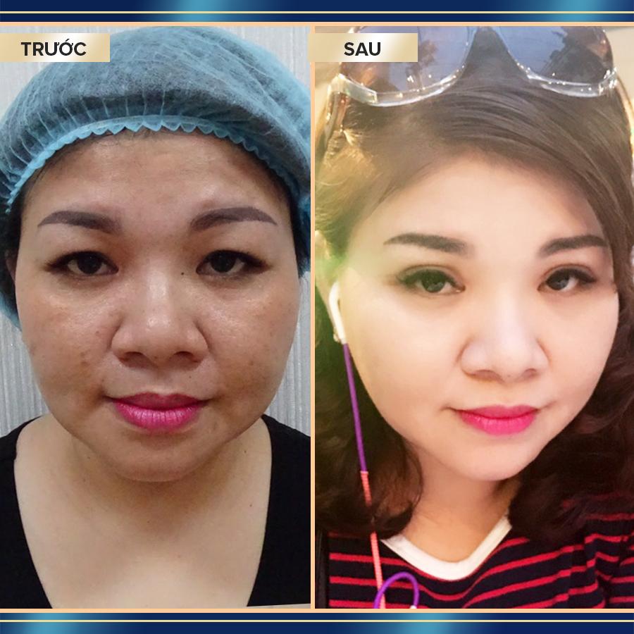 Khách hàng sau khi lấy mỡ bọng mắt tại TMV Phú Khang