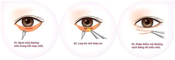 quy trình ưu điểm lấy mỡ bọng mắt