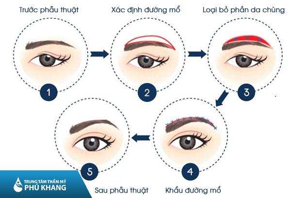 nang-cung-chan-may-phu-khang